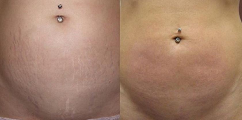 Tatuagem Para Cobrir Estrias Conheça A Técnica Que Apaga As